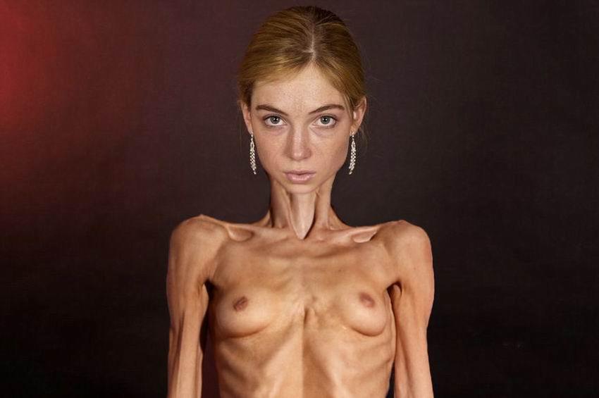 толчок анорексички голышом фото лишь